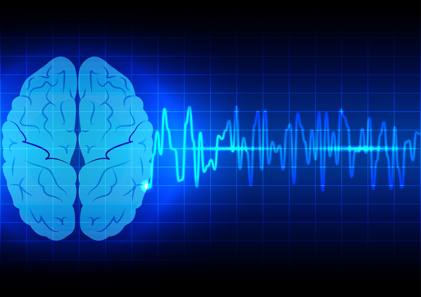 A blueprint of a brain with spectrum that is enough to file a brain injury claim.